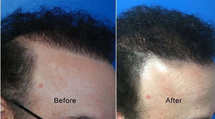 Before photo is of patient with old plug style hair line and the after is 1 year after FUE hair transplantation of back hair to soften and expand the hairline.